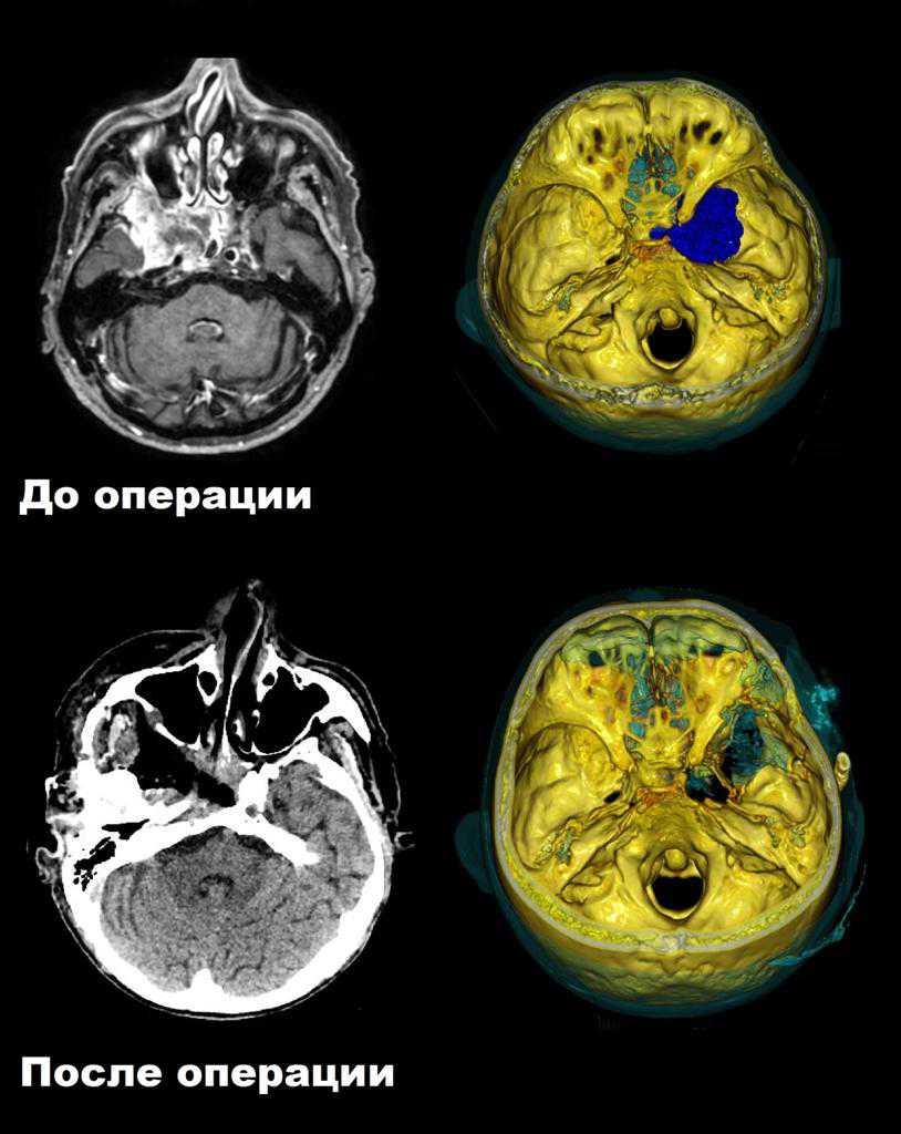 Нейрохирурги провели сложную операцию по микрохирургическому удалению обширной редкой опухоли (1)